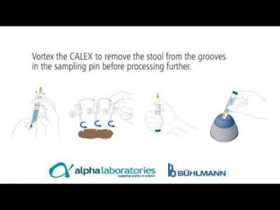 Complete Calprotectin Automation with Track CALEX® from BÜHLMANN
