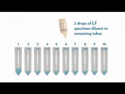 IMMY's Cryptococcal Antigen Lateral Flow Assay Training - Part 2 of 2